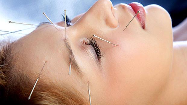 acupuncture_iStock_00001447